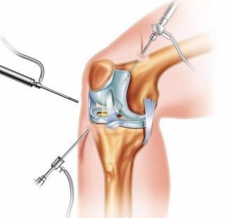 Артроскопия: особенности диагностического метода